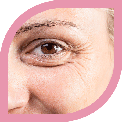 Best Botox Treatment for Wrinkle Removal