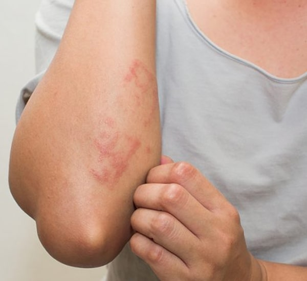 Best Eczema Treatment Clinic in Bangalore