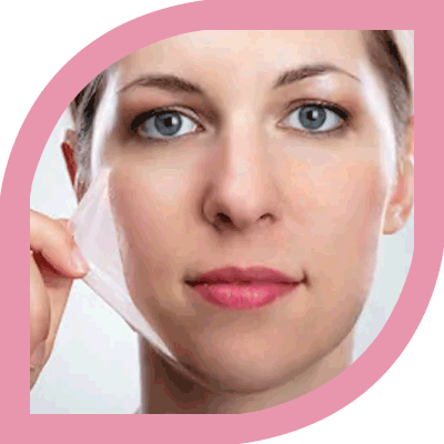 Chemical Peeling treatment Bangalore