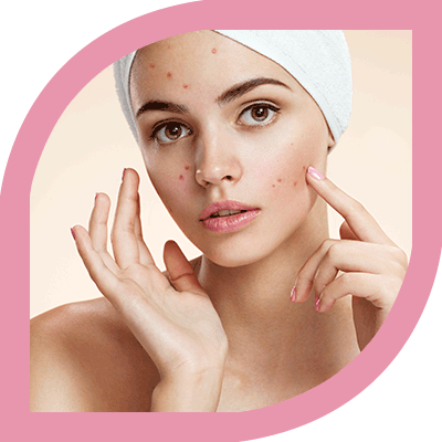 Acne and Acne Scars treatment