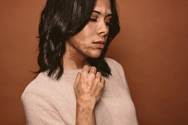 Vitiligo treatment Bangalore