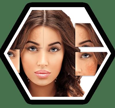 Acne Scars & Marks Treatment Bangalore