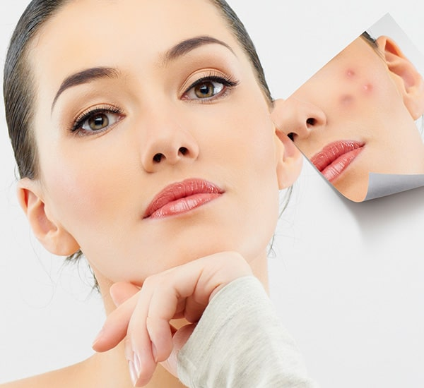 Acne Breakouts treatment Bangalore