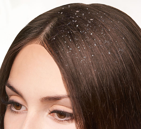 Dandruff treatment Bangalore