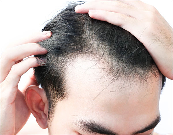 telogen effluvium hairloss treatment Bangalore