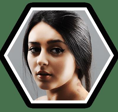 Keloids  Hypertrophic Scars treatment Bangalore