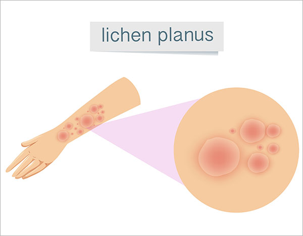 lichen planus treatment Bangalore