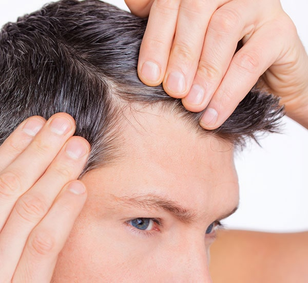 male hair loss treatment Bangalore