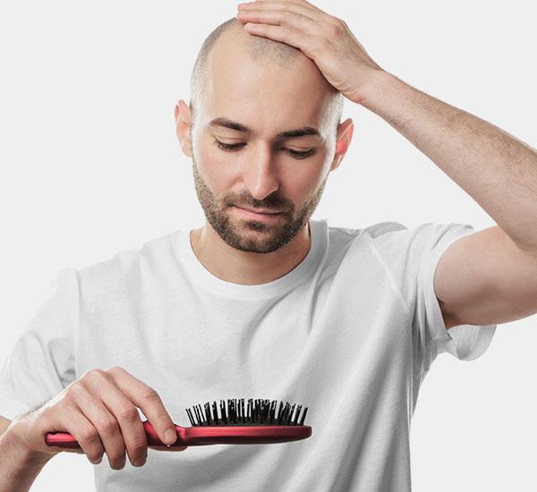 male Hair loss treatment Bangalore