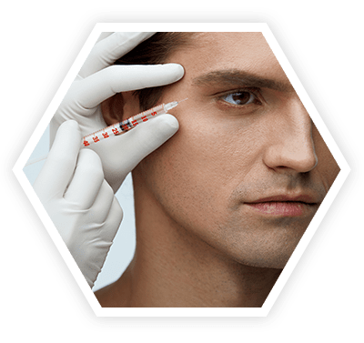 Microneedle Radiofrequency for Scars and Skin Tightening bangalore