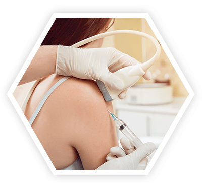 Stretch Marks Treatments in whitefield Bangalore